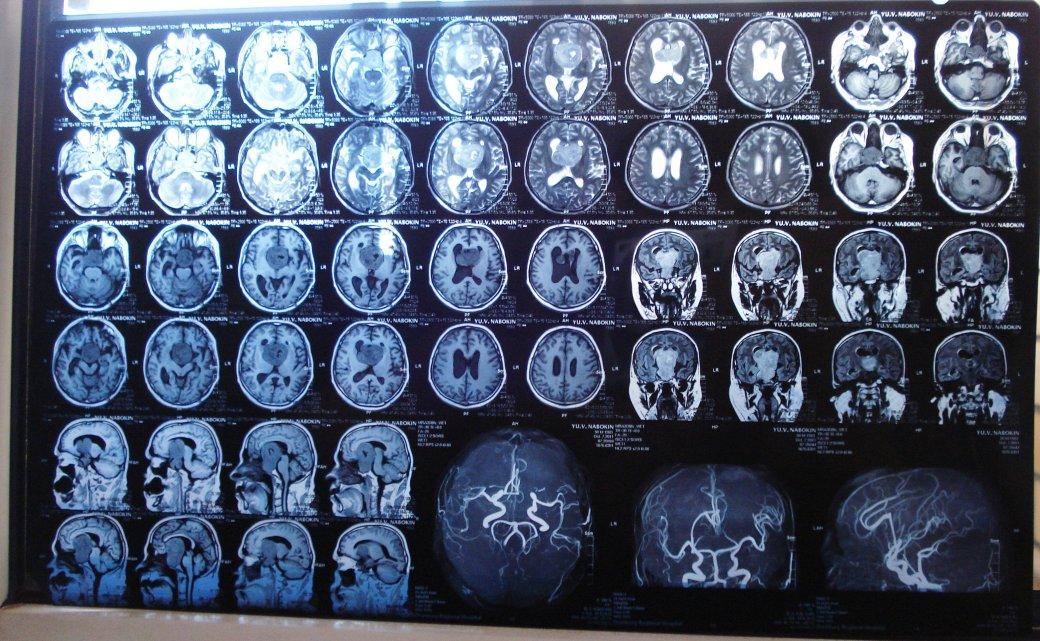Вот такая «Люси»: 7 мифов о мозге - Изображение 4